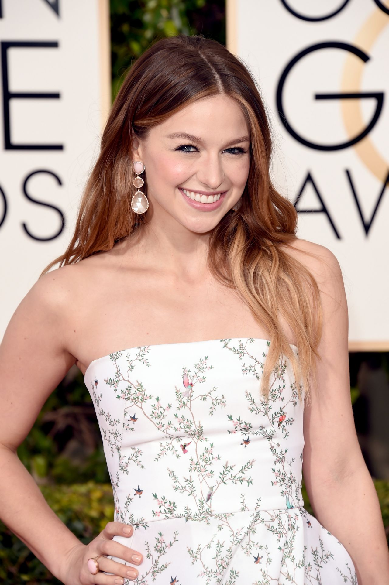 melissa-benoist-2016-golden-globe-awards-in-beverly-hills-1