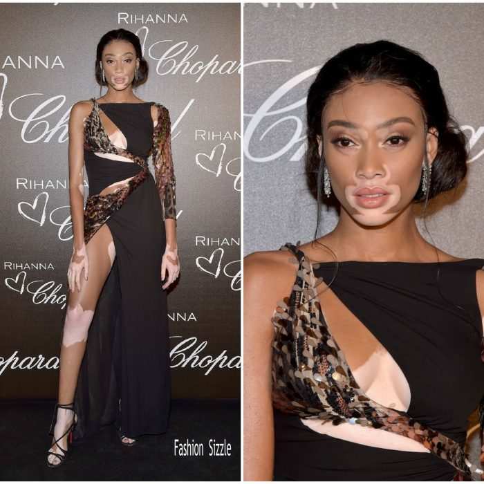 winnie-harlow-in-roberto-cavalli-chopard-x-rihanna-dinner-party-700×700