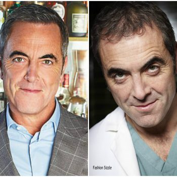 why-james-nesbitt-needed-a=hair-transplant