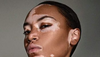 cover-girl-features-first-vitiligo-model-in-ad-campaign