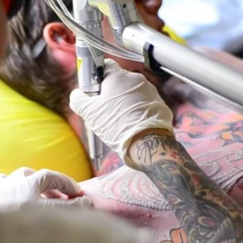 why-consider-tattoo-removal