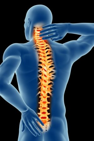 is-spinal-arthritis-curable