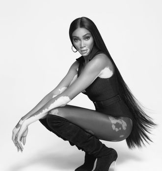 winnie-harlow-poses-as-global-ambassador-for-paul-mitchells-campaign-in-casadei-boots