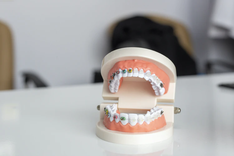 braces-vs-aligners-which-one-is-better