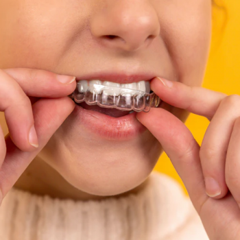 braces-vs-aligners-which-one-is-better-2